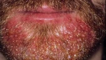 Barba abundante, una moda que podría concentrar microbios, parásitos y hasta piojos