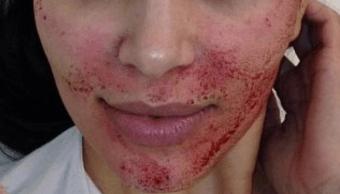 FOTO Detectan casos de VIH en Nuevo Mexico, por 'facial vampiro' (Allure archivo)