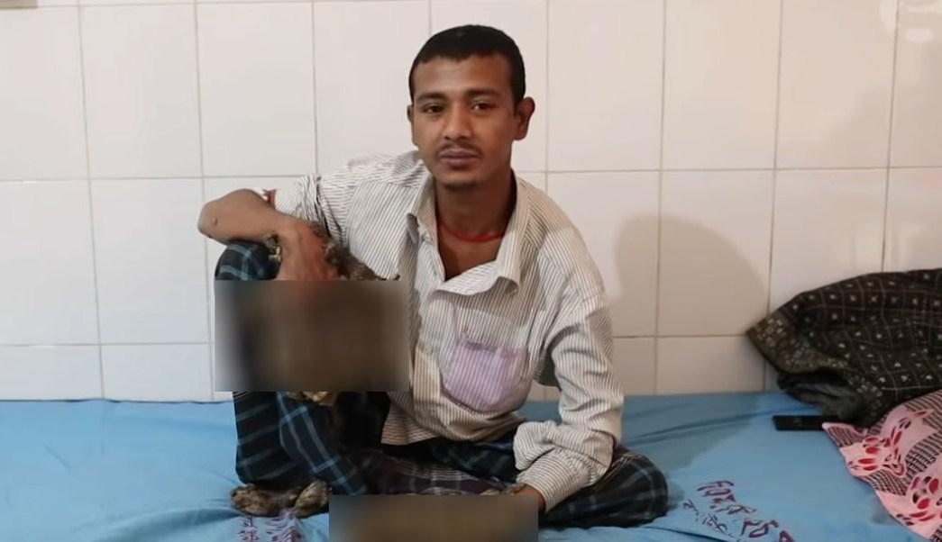 Abul-Bajandar-hombre-arbol-verrugas-gigantes-amputen-manos