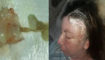 Foto Mujer vivía con un gusano en el cerebro 6 junio 2019