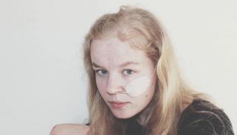 Foto Muere por eutanasia joven que era víctima de violencia sexual 5 junio 2019