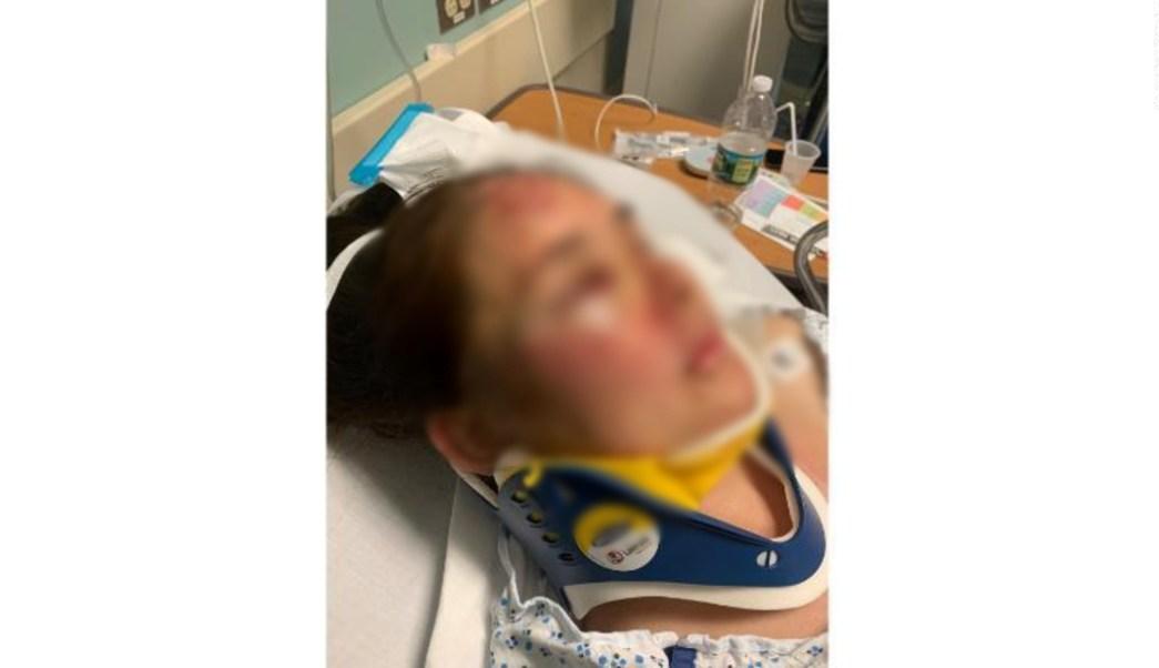 FOTO Madre fue brutalmente golpeada por defender a su hijo de bullying racial 28 junio 2019