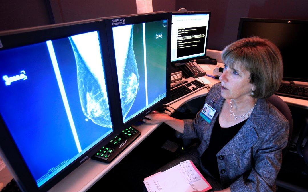 Cancer-mama-celulas-cancerosas-grasa-metastasis