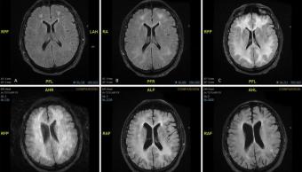 Foto Cocaína Devora Cerebro 1 Agosto 2019