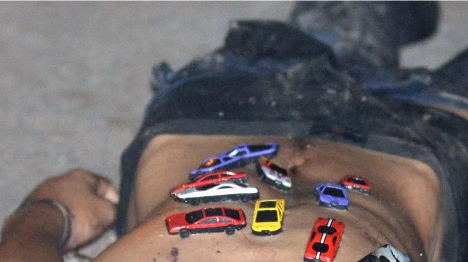 Foto: Los carritos le fueron colocados en el tórax. El Debate