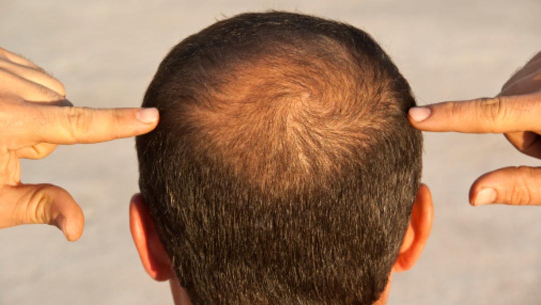 hombre cabello calvicie