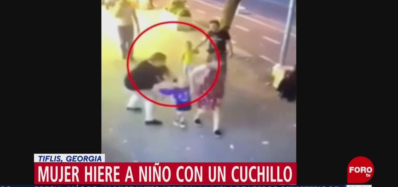 Foto: Mujer Ataca Niño Tres Años Cuchillo 30 Agosto 2019