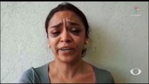 Foto: Reportera Denuncia Intento Violación Policías Golpean 21 Agosto 2019