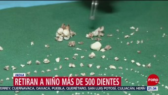 Foto: Retiran Niño Tumor 500 Dientes 1 Agosto 2019