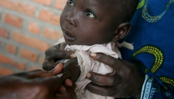 FOTO Sarampión causa más muertes que ébola en Congo (AP)