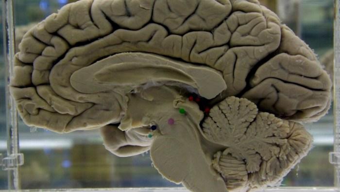 Foto Descubren una manera de detener el progreso del Alzheimer 2 septiembre