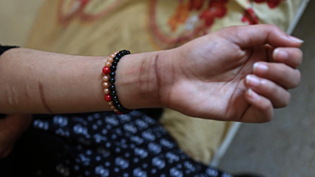 Foto: Intento de suicidio en Irak, 6 de diciembre de 2017