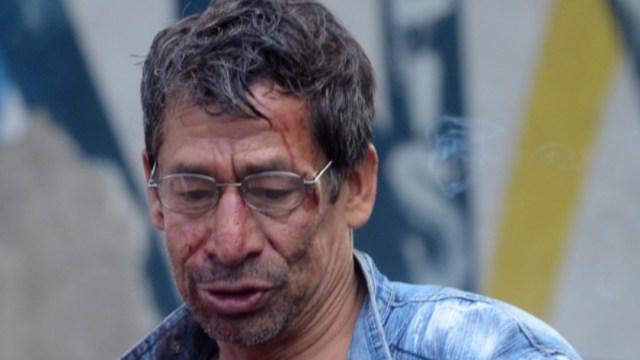 Foto: Un hombre de 28 años fue enviado a un nosocomio público, 15 de octubre de 2019 (Armando Monroy /Cuartoscuro.com)