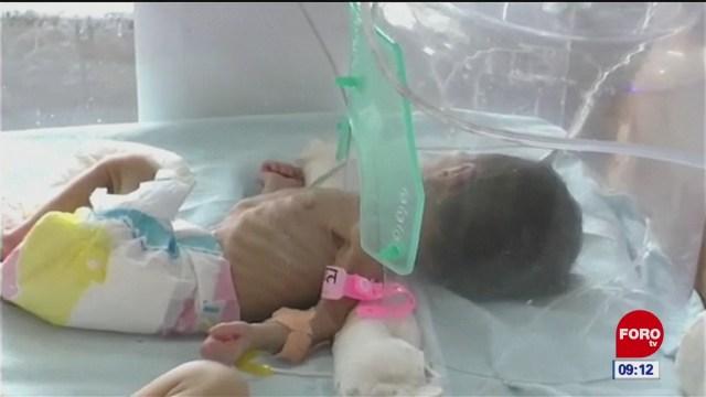Hallan a bebé enterrada viva en la India