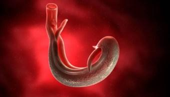 Imagen: James Michael luchó contra una enfermedad causada por un gusano parásito que ingresó por su pene después de nadar en un lago de Malawi, África, durante unas vacaciones con dos amigos