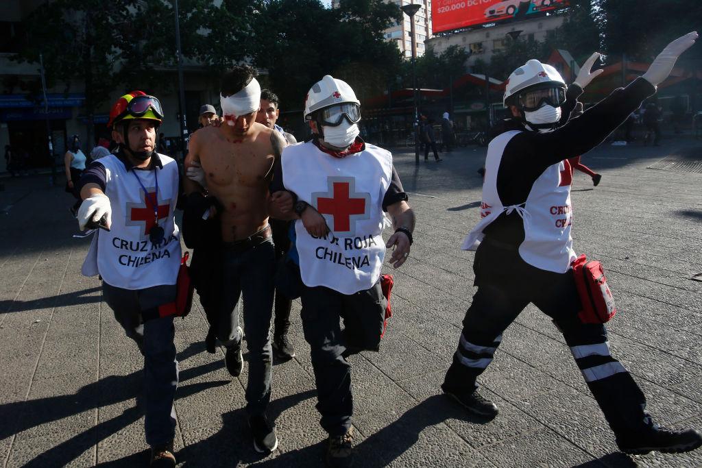 'Epidemia' de lesiones oculares cambian lo dicho por gobierno de Piñera