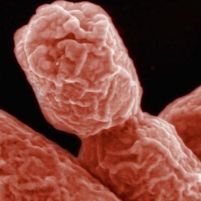 UNAM alerta que bacterias se están volviendo resistentes a los antibióticos