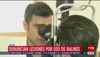 Más de 200 manifestantes con lesiones oculares durante protestas en Chile