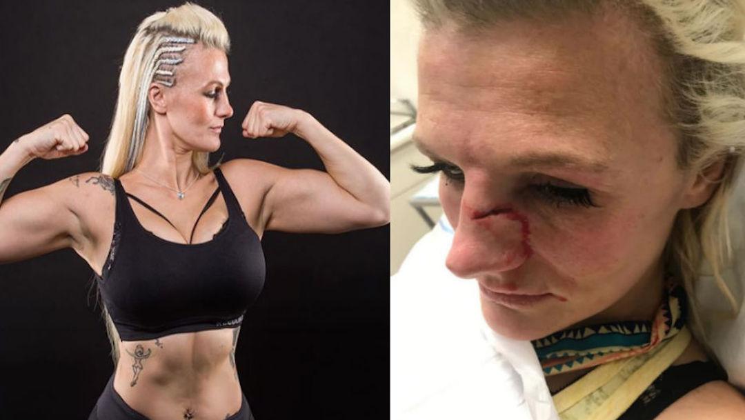 Foto Peleadora de Artes Marciales es brutalmente golpeada por su pareja 29 noviembre 2019