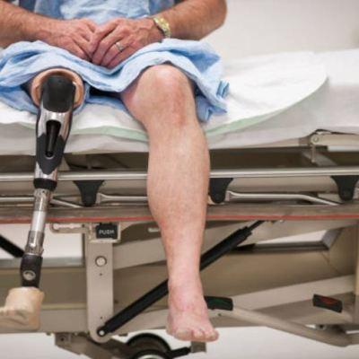 Violencia y accidentes, principales causas de discapacidad motriz en México