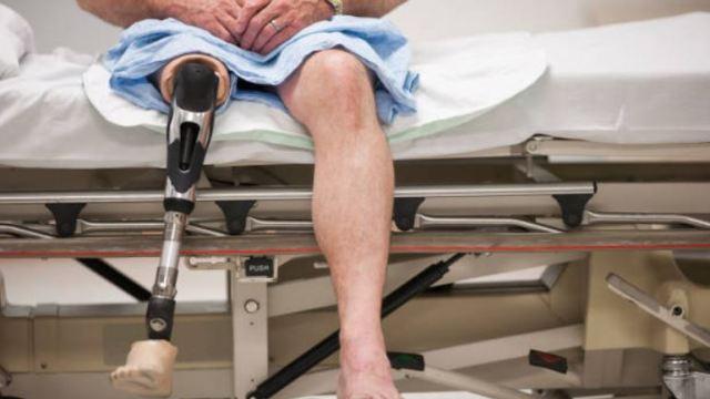 Imagen: En México, alrededor de 900 mil personas viven con amputaciones, de las cuales, sólo el 10 por ciento cuenta con una prótesis