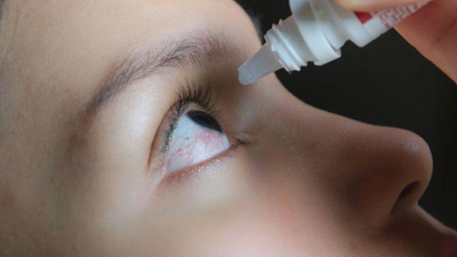 Foto: Un joven aplica gotas en los ojos. Getty Images