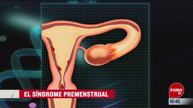 el sindrome premenstrual