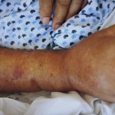 CNDH abre investigación por decesos en hospital de Pemex; familiares acusan negligencia