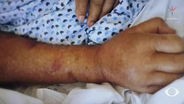 Foto: Uno de los pacientes, de 75 años de edad, ingresó para una recolocación de catéter y continuar con sus terapias de diálisis peritonial, sin embargo, este miércoles fue declarado con muerte cerebral