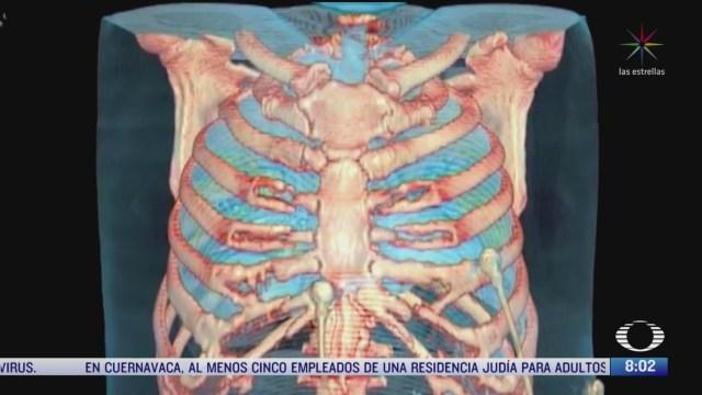ampliar la capacidad pulmonar ayuda a protegernos del coronavirus