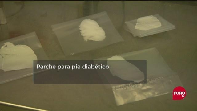 FOTO: 31 de mayo 2020, parche para pie diabetico