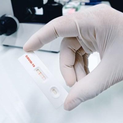 Cofepris autoriza uso de tres pruebas serológicas para detectar Covid-19