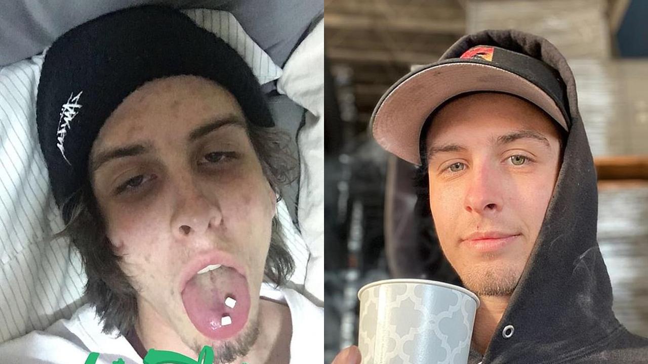 Fotos comparando a un adicto después de dos años de estar sobrio.