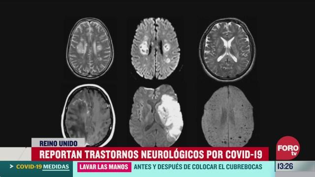 cientificos britanicos reportan danos cerebrales serios por covid