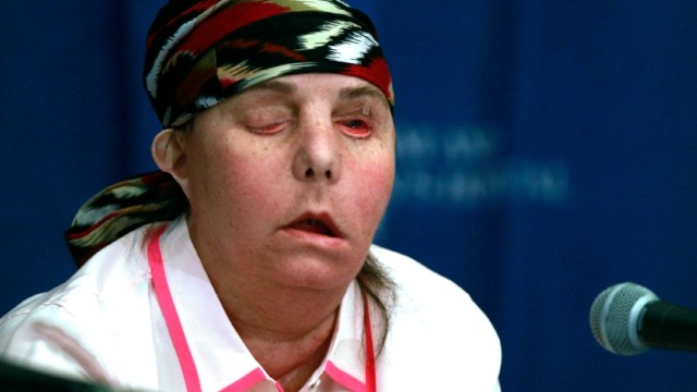 Realizan-segundo-trasplante-de-cara-a-una-mujer-en-EEUU