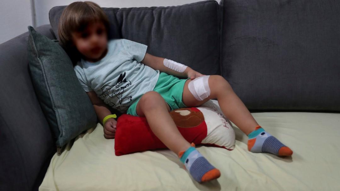 Los niños en Beirut sufren trauma tras la potente explosión