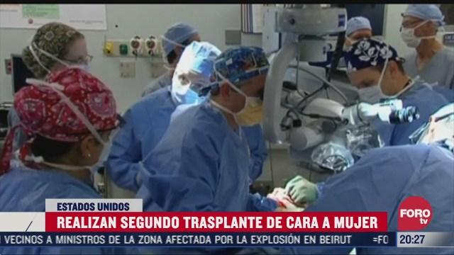 segundo trasplante de cara a una mujer golpeada por su exesposo en Estados Unidos
