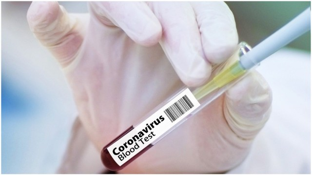 Prueba de vacuna contra el coronavirus COVID-19