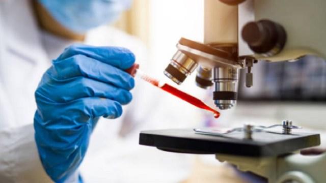 Cáncer-gástrico-podría-prevenisrse-con-análisis-de-bacteria
