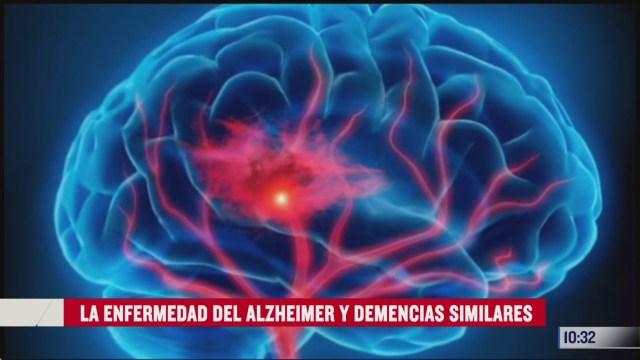 la enfermedad del alzheimer y demencias similares