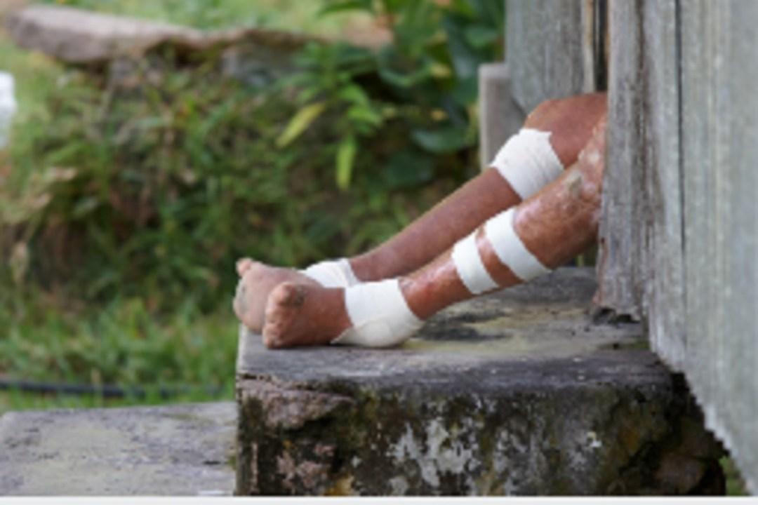 Reportan-cinco-casos-de-lepra-en-Yucatán-y-Quintana-Roo