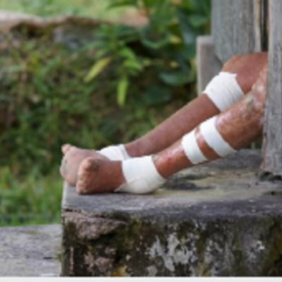 Reportan cinco casos de lepra en Yucatán y Quintana Roo