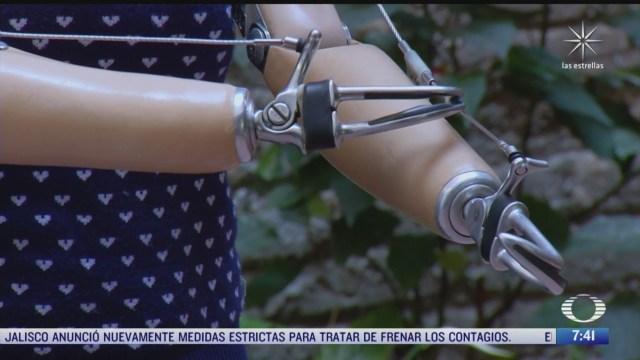 pocas personas con discapacidad en mexico consiguen protesis