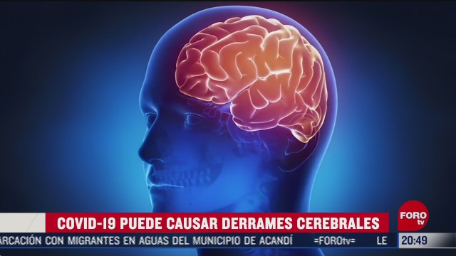 covid 19 aumenta el riesgo de un derrame cerebral