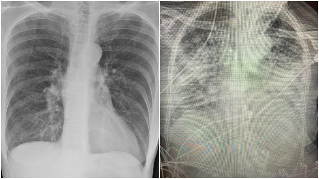 Pulmones de personas con covid más dañados que de fumadores