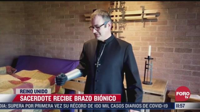 sacerdote recibe brazo bionico