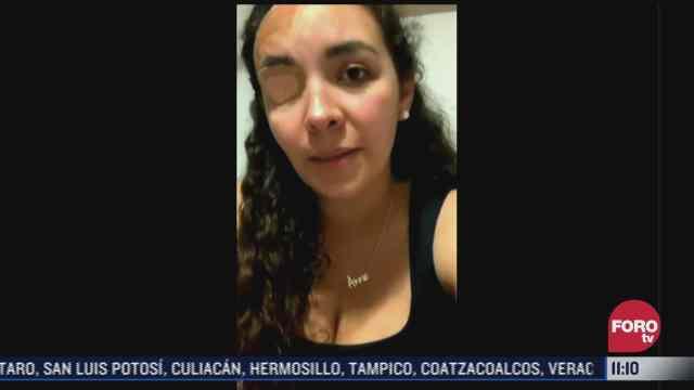 ana helena pide buscar a mujer que la ataco con acido en cdmx