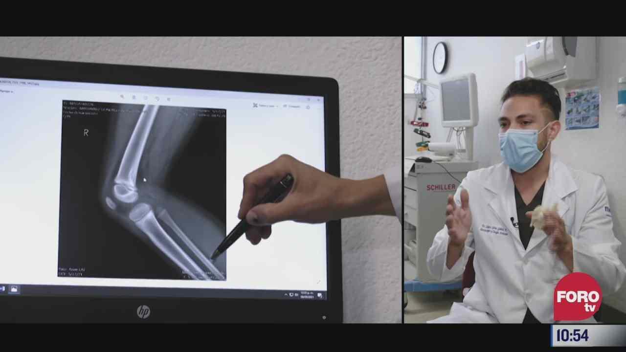 la funcion de la rodilla en el cuerpo humano