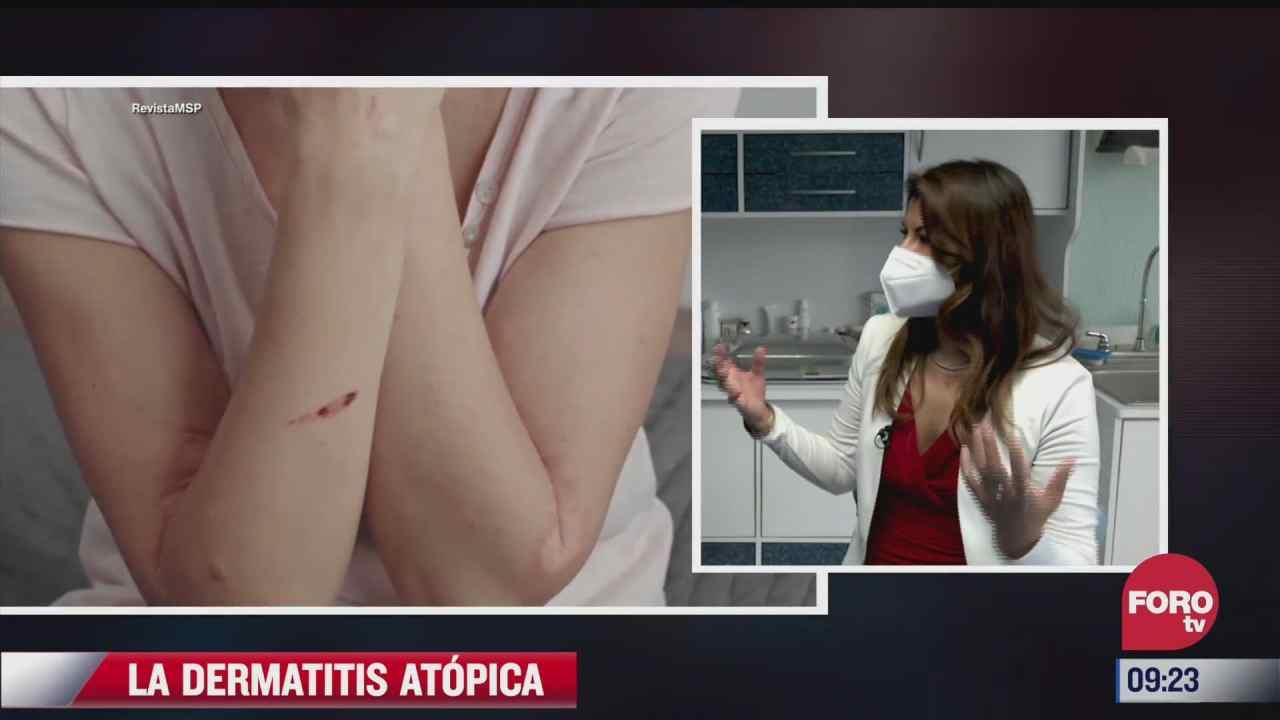 que es la dermatitis atopica