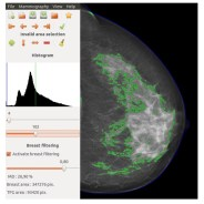 cancer de mama scan